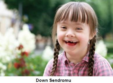 Kromozom sayısının değişmesi sonucu oluşan bir mutasyon.